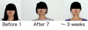 顎関節症と診断された方へのロルフィングセッション